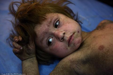 العثور أطفال أنقاض الموصل 333_14.jpg?itok=cPXNG1YK