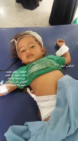 الحوثيون يرتكبون جرائم إبادة ويقنصون 8_256.jpg?itok=U_ZXSfdR